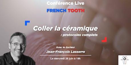 Conférence JF Lasserre // Collage de facettes : Protocoles actuels billets