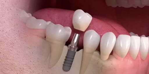 Restoring Straumann  Implants:  (Hands on Training)