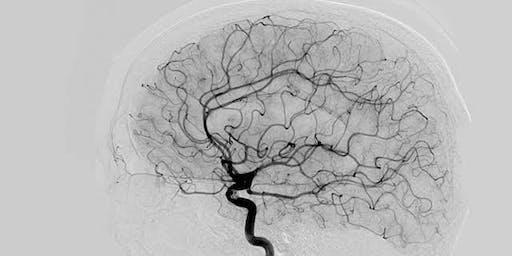 Tratamiento Endovascular de Enfermedades Cerebrovasculares