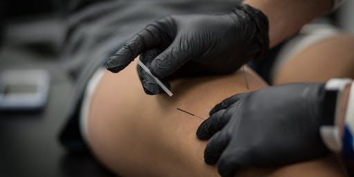 [RIO DE JANEIRO-RJ] Dry Needling no Controle da Dor