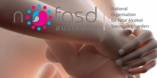 FASD Train it Forward Masterclass