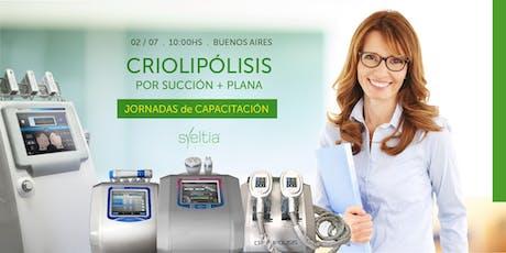 Criolipólisis por succión + plana entradas