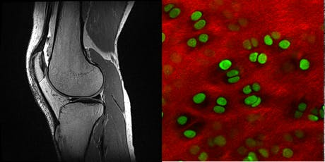 Imaging in Arthritis - A public science lecture tickets