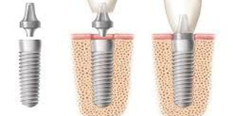 Predictable Implant Dentistry: Planning to Executing tickets