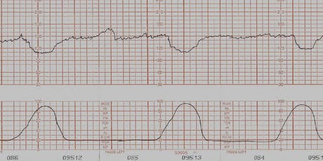 Advanced Fetal Monitoring: A Multidisciplinary Approach tickets