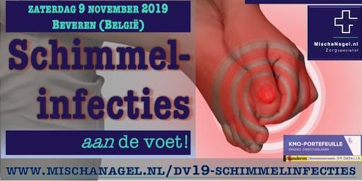Mischa Nagel's Dag van de Voet | Schimmelinfecties