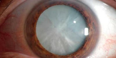 24th Nottingham Eye Symposium