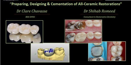 Preparing, Designing & Cementation of All-Ceramic Restorations tickets