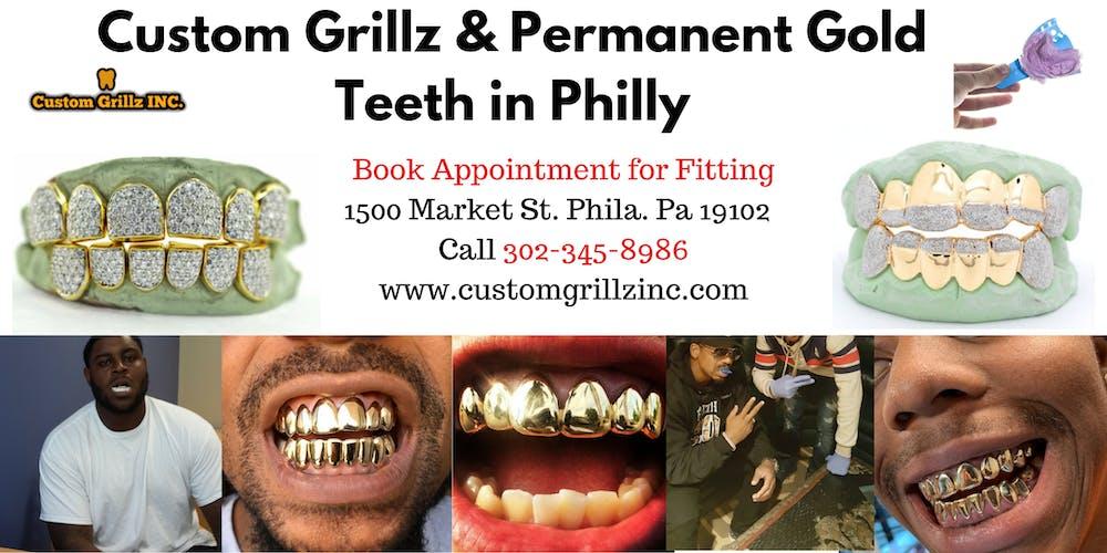 18eb95fe45f20 Custom Grillz & Permanent Gold Teeth Fittings in Philadelphia