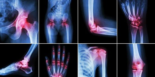 Health Check-up: Nerve, Joint and Muscle Open Day