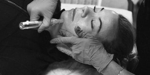 San Francisco: MicroNeedling For Acupuncturists & Students