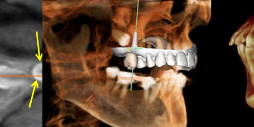 Level 1 (Beginner's): Introductory CBCT course