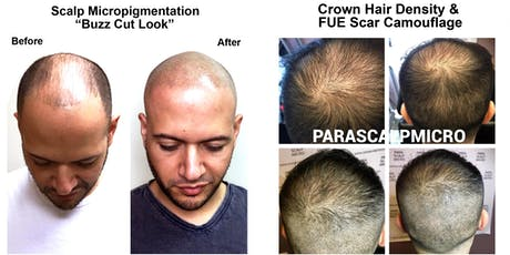 Understanding Scalp Micropigmentation tickets