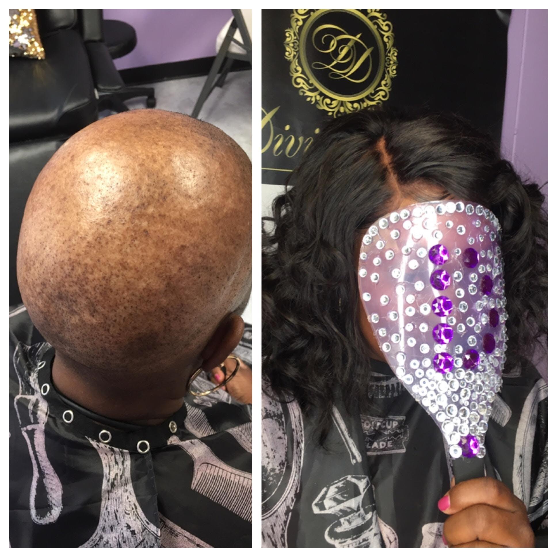 Hair Loss Alopecia Cranial Wig Prosthesis for Veterans