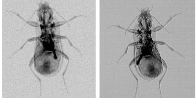 Detecting the undetectable - transforming the use of x-rays 124 years after their discovery