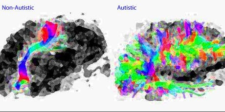 Creating Autism Inclusive Environments:  Helping children and young people thrive tickets