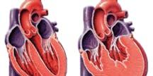Senior Advantage: Congestive Heart Failure (CHF)