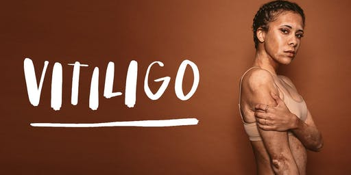 Capturing the true Beauty of Vitiligo