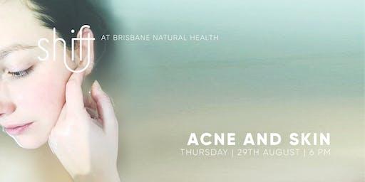 Acne and Skin - Brisbane