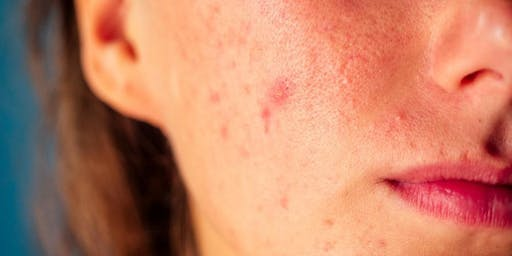 Diagnosis and Management of Rosacea, Acne and Actinic Keratosis in Primary Care