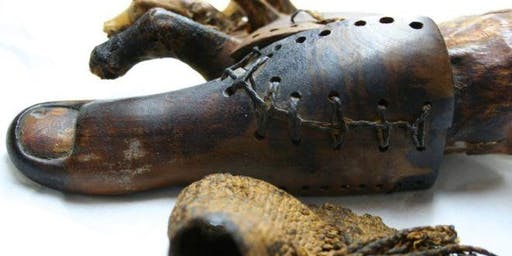 Prostheses in Antiquity: Everything You Never Knew You Wanted to Know (Mcr Classical Association)