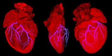 Are my immune cells giving me heart disease? tickets