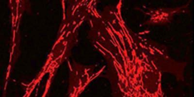 14th International Workshop on Cardiovascular Biology and Translational Medicine