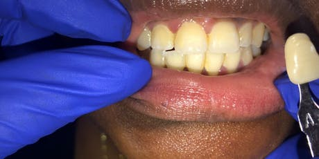 Teeth Whitening Course  tickets