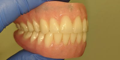Dentures: Fit, ****, and Smile