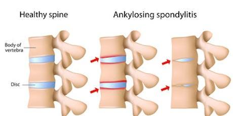 Northern Wisconsin - Ankylosis Spondylitis Support Group tickets