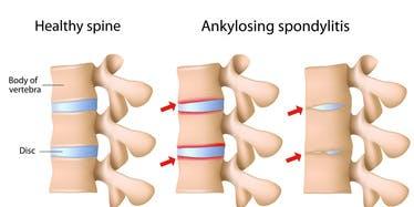 Northern Wisconsin - Ankylosis Spondylitis Support Group