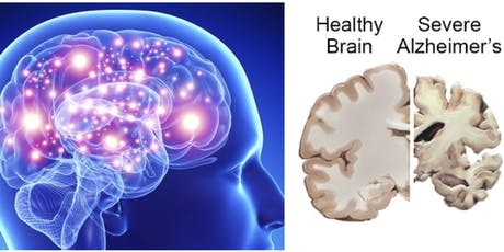 Change Your Brain's Destiny: tools to prevent Alzheimer's tickets