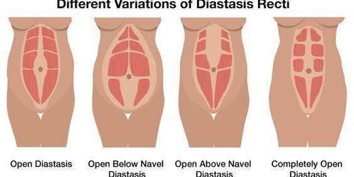 Diastasis Recti: During and After Pregnancy