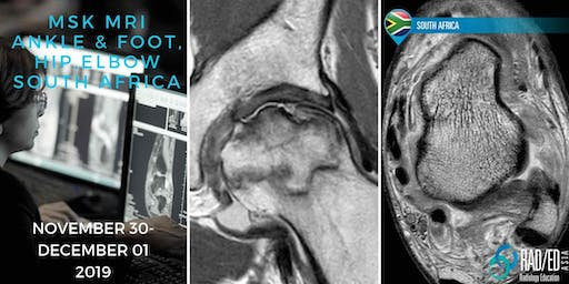 Radiology Conference Johannesburg SOUTH AFRICA MRI Ankle & Foot, Hip and Elbow Mini Fellowship and Workstation Workshop 30th November - 1st December 2019: Radiology Education Asia