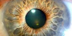 Iridology - studying the iris