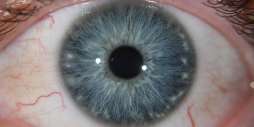 Iridology Level 2