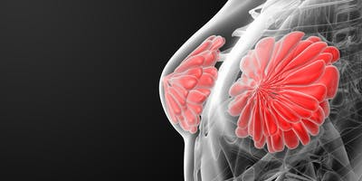 Breast Cancer Cause - Marketing. Welcoming an Era of More Diverse Campaigns