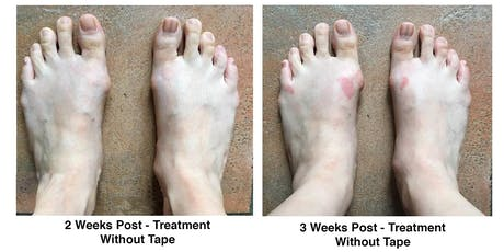 Natural solutions for resolving bunions and foot pain tickets
