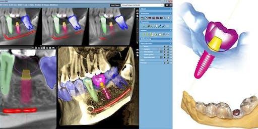 3D Implant Workflow/Live Patient Surgical Course