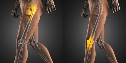 Free Hip and Knee Pain Event (General Public)