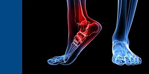 The Impact Of Cancer And Chemotherapy On The Lower Limb.
