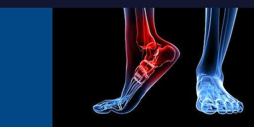 Mid Sussex COP Branch Group Evening meeting- Rheumatoid foot