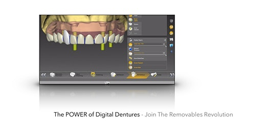 The Power of Digital Dentures - Hands On Advanced Course
