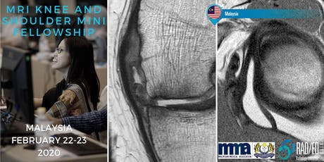 Radiology Conference KUALA LUMPUR MALAYSIA Knee and Shoulder MRI Mini Fellowship and Workstation Workshop 22nd - 23rd February 2020: Radiology Education Asia tickets