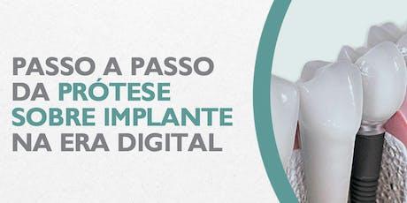 Passo a Passo da prótese sobre implante na era digital ingressos