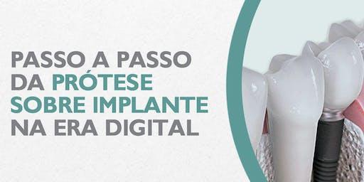 Passo a Passo da prótese sobre implante na era digital