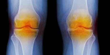 Advanced Treatment Options for Knee Pain tickets