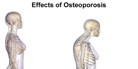 Osteoporosis Risks and Treatment Options tickets