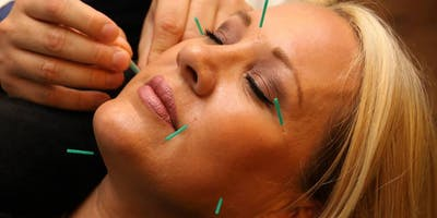 SD Week 2: Microneedling Workshop For Acupuncturists/Students
