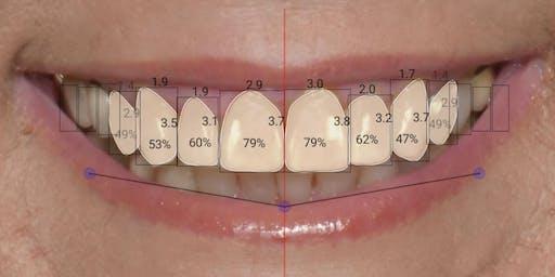 Digital Smile Design & CAD/CAM Case Finishing